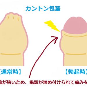 カントン包茎について 上野クリニックに行く前にあなたの症状は?