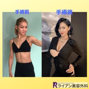 PCAボディビル選手ナレちゃん♡豊胸手術後の大変身ぶり‼