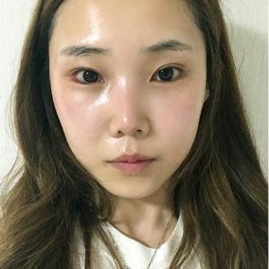 ☆12月予約者限定☆ラミチェ整形外科<輪郭プロモーション>