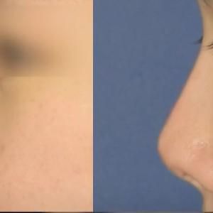 タイプ別◇代表的な鼻再手術対象