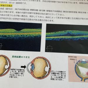 黄斑前膜【手術決定までの経過】