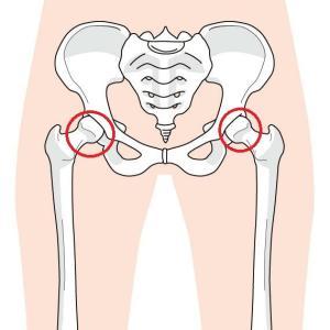 股関節とターンアウト