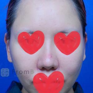 ⭐パク先生の肋軟骨を使用した鼻の再手術⭐⭐
