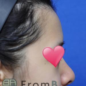 パク先生による【肋軟骨】を使った鼻の手術!