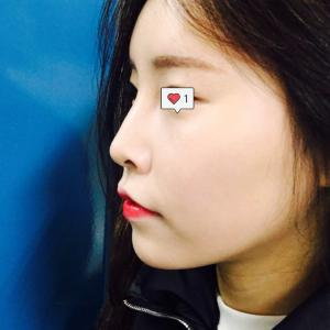 【ビフォーアフター】鼻の手術:まるで女神のような美しさ