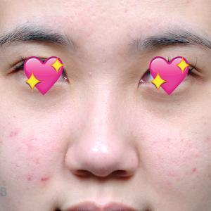 【ビフォーアフター】鼻の手術「自家肋軟骨」