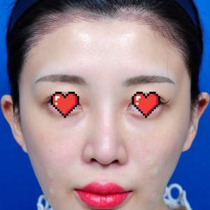 【ビフォーアフター】肋軟骨を使った鼻の手術