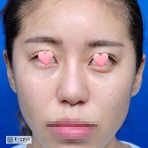 【ビフォーアフター】肋軟骨を使った鼻の再手術