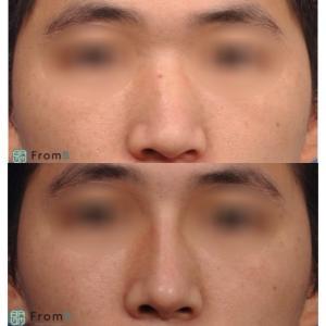 【フロムビー】『前後症例』:福鼻、団子鼻、鷲鼻、曲がり鼻