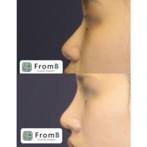 【フロムビー】『前後症例』:低い鼻・短い鼻・団子鼻・鷲鼻