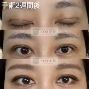 フロムビー動画)目の症例:上眼瞼切開・二重切開・たるみ矯正・末広ライン
