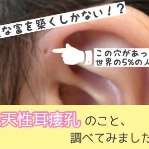 世界に5%だけ!娘の耳に穴がもうひとつ?先天性耳瘻孔とは?
