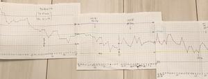 1/8の体重 血糖値検査の採血してきました&スイニー、フォシーガ60日分の金額