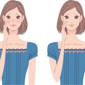 便秘が理由で肌荒れを起こす!肌荒れを改善するビフィズス菌