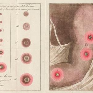 天然痘って人類滅亡の危機だったよな