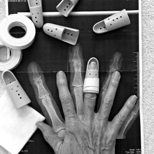 Trek – Segafredoのクーン・デコルトが指を切断する重症