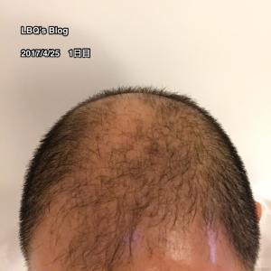 2ヶ月経過した頭部の状況写真をアップ【AGAセルフ治療61日目】