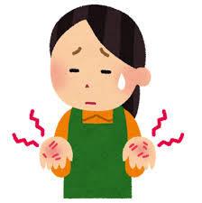 原因は血行障害?大人のしもやけを治す意外な方法