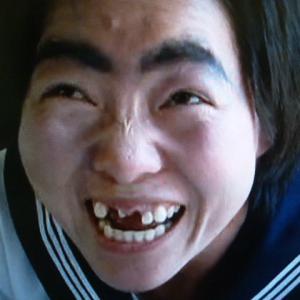 歯っ欠けババアです。