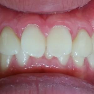 前歯の矯正と歯の欠損形態の回復 1年間経過