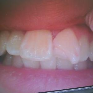 【歯をぶつけた場合】3年経過症例