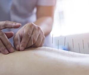 あいおい整骨院の鍼灸施術は3500円です。
