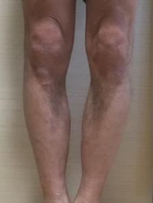 O脚矯正プログラム「福辻式」実践レビュー (実践前の私の状態)