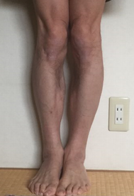 O脚矯正プログラム 「福辻式」実践レビュー(3週間目)