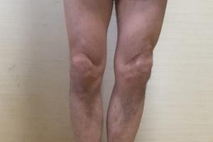 O脚矯正プログラム 「福辻式」実践レビュー(2週間目)