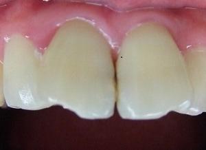 歯並びが気になる・・続き。   歯並び 審美歯科