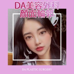 【韓国美容/韓国整形】♥DAシェピング輪郭手術♥