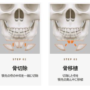 顎先延長と縮小、手術の方法は?