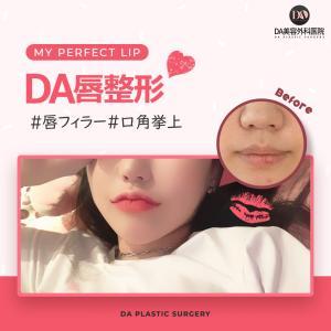 韓国プチ整形♥唇フィラー♥