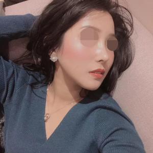 DA鼻整形の注意事項