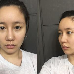 韓国DA整形外科の輪郭手術は若く見えるマジック!
