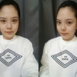 【韓国美容整形】韓国DA美容外科でV-line完全征服!‗Ep.2