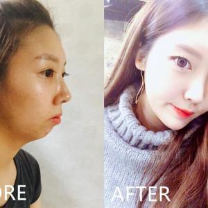【韓国美容整形】顎なし完璧矯正、DA美容外科‗Ep.2♡