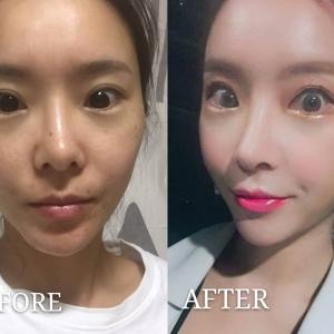 【鼻整形】再手術こそ安心できるDA美容外科で!‗Ep.2★