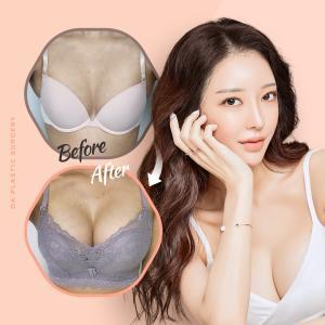 【豊胸整形】DA美容外科、豊胸手術の注意事項