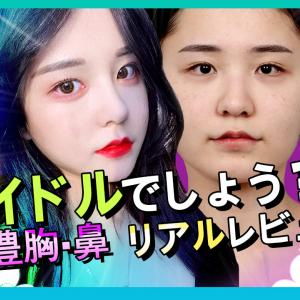 【韓国整形/整形VLOG】アイドルクラスの美貌!輪郭・豊胸・鼻整形リアルレポ