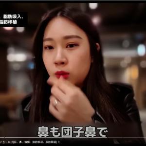 【韓国整形/整形VLOG】輪郭、目、鼻、脂肪移植、二重顎脂肪吸引、糸リフトアップを同時に?