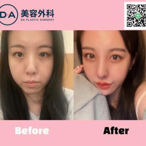 【整形レポート】垢抜け大成功!オトガイ形成+顔脂肪吸引+鼻手術+目手術