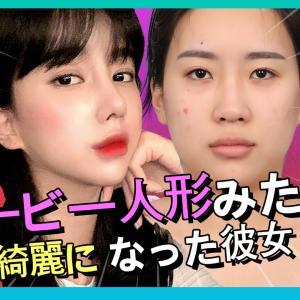 【韓国整形/整形VLOG】バービー人形見たい!骨切らなくても小顔美人に変身!