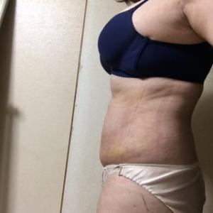 上腹部・ウエスト脂肪吸引 6日目