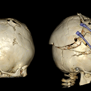 ラムダ縫合早期癒合、骨延長手術前後のCT比較