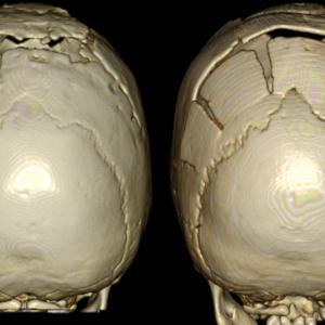 術後と術後半年CT画像比較 とろとろチーズ。