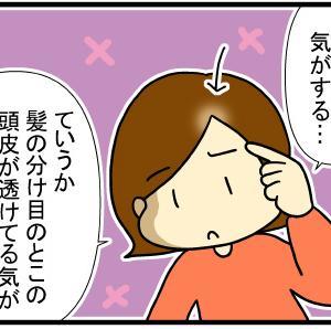 43歳女子の薄毛と頭皮の問題