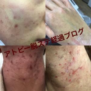 アトピー経過(10月〜12月)