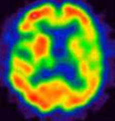 リコーダー練習で脳血流検査の話する