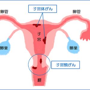子宮頸がんと体がんは異なる
